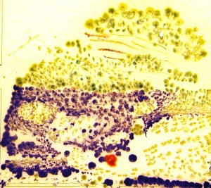 Bacterial pointillism, Ophelia