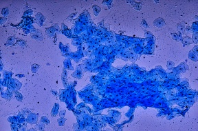 Biopsies stained with methylene blue. My cells are clearly visible, as are their nuclei (the darker oval objects inside my cells)