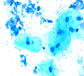 A saliva sample stained with methylene blue. Buccal epithelial cells are visible as large pale blue cells with a dark staining nucleus contained the genome/DNA. Numerous bacteria are visible either attached to the cells or in other parts of the stained sample. 1000x magnification