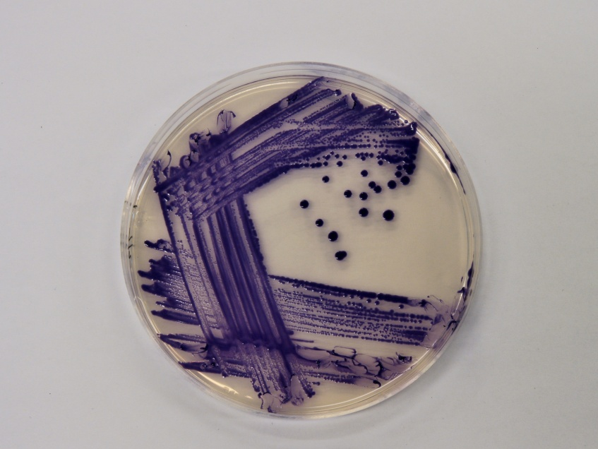 An agar plate containing a culture of the purple pigmented bacterium Chromobacterium violaceum.
